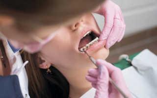 Лучшая фиксация выравнивания зубов: составные части лигатуры для брекетов