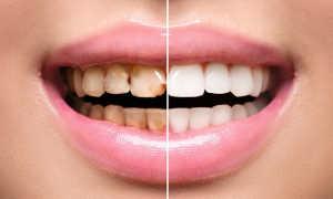 Реставрация жевательных зубов в москве. цены на восстановление жевательных зубов, фото до и после процедуры, отзывы