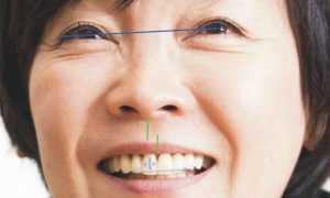 Все самое важное о смещении средней линии зубов