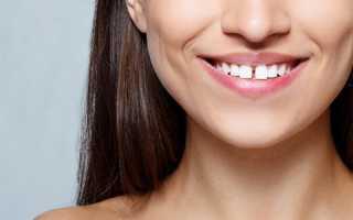 Диастема: оставлять или убирать щель между зубами?