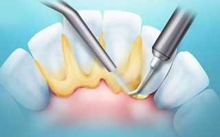 Как выглядит зубной камень у человека фото