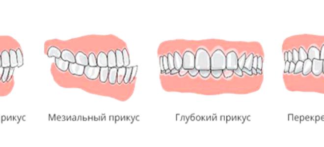 Этиология зубо-челюстных деформаций