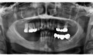 Альвеолярные отростки верхней и нижней челюстей