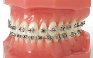 Брекеты на зубы, стоимость установки. цена брекет систем в москве