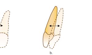 Популярно о значении торка в брекетах при ортодонтическом лечении