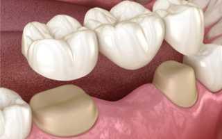 Что лучше поставить мост или имплант на жевательный зуб зубная имплантация
