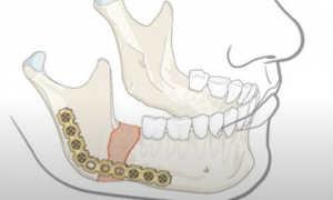 Остеосинтез челюсти: особенности метода