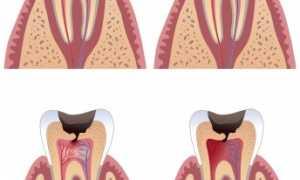 Острый диффузный пульпит: симптомы, лечение и фото