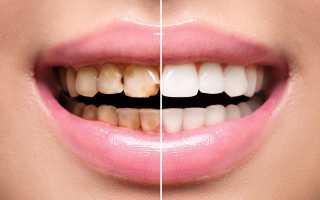 Методы реставрации эмали зубов