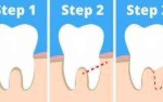 Ампутация корня зуба — что это такое, показания и противопоказания, процедура