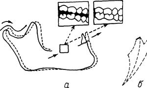 Биомеханика нижней челюсти: все, что вы хотели знать