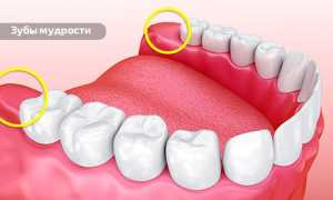 Растет зуб мудрости и болит челюсть что делать