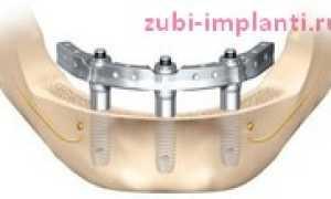 Имплантация Trefoil — протезирование на трех имплантах