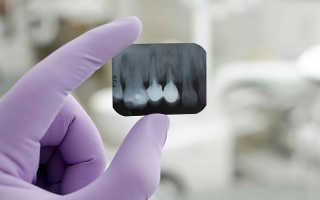 Можно ли на рентгеновском снимке увидеть, какой зуб болит?