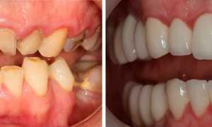 После установки моста один зуб соприкасается с антагонистом раньше остальных