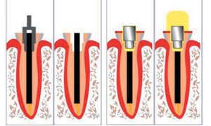 Клинические примеры реставрации зубов