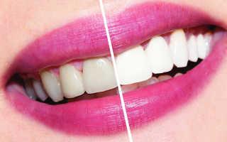 Отбеливание зубов пациента