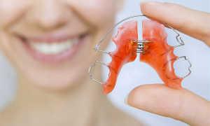Сколько длится ретенционный период, виды ретейнеров