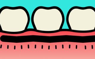 Сильно болит зуб после лечения