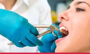 Почему болит челюсть после удаления зуба мудрости: перечень причин + лечение