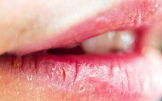 Болезни губ: эксфолиативный хейлит. формы, симптомы, лечение хейлита