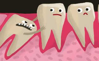 В каком порядке удалять ретинированные зубы мудрости?