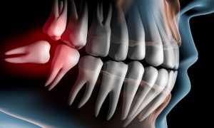 Если удалить зуб мудрости выровняются ли зубы