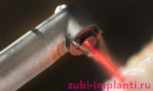 Лазерная имплантация зубов: что это такое, инновационный и безопасный способ операции лазером