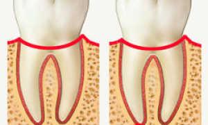 Строение и функции периодонта зуба