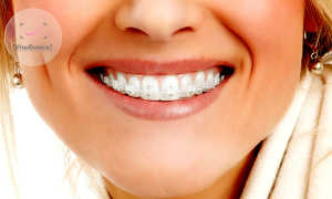 Когда и с какой целью рекомендуется установка брекетов на 2 челюсти