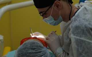 Трещины на зубах: причины, симптомы, что делать, лечение, профилактика