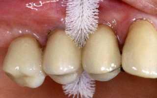 Зубная паста для коронок