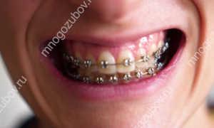 Почему темнеют зубы в брекетах