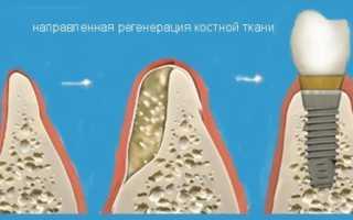 Все тонкости проведения направленной костной регенерации