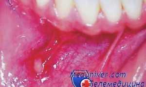 Красное пятно на десне у ребенка, симптомы заболеваний десен