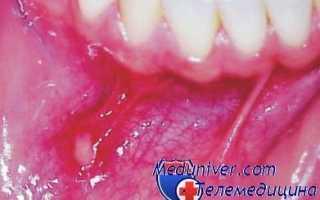 Причины и лечение герпеса во рту у ребенка