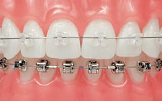 Комбинированные брекеты — фото и виды зубных систем