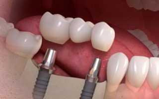 Чем отличается All-on-6 от базальной имплантации?