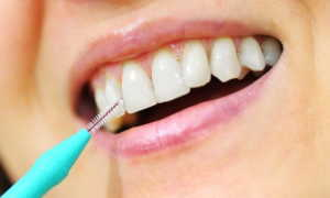 Что такое Ершик зубной?