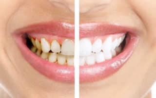 Что выбрать чистку зубов или отбеливание?