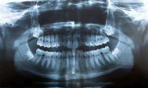 Панорамный снимок зубов (ортопантомограмма): особенности