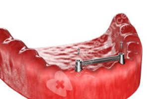 Имплантация и условно-съемное протезирование