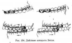 Аппараты механического действия (активные)