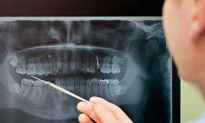Рентген зубов, вредно ли это и как проводят эту процедуру