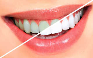 Какое отбеливание выбрать для зубов с пломбами?