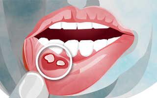 Симптомы и лечение аллергического стоматита