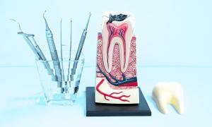 Удалять ли нерв в пролеченном зубе, если появилась боль при накусывании?
