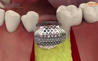 Аугментация в стоматологии – это находка для пациентов с дефектом челюстной кости