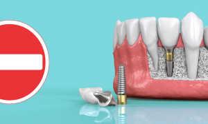 Импланты зубов: отзывы, противопоказания, вред для организма