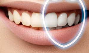 Виды зубного налёта и способы его удаления